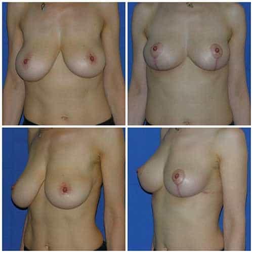 dr robert zerbib chirurgie plastique chirurgien esthetique paris 16 75116 chirurgie esthetique des seins lifting mammaire lifting des seins ptose mammaire affaissement des seins seins qui tombent 7
