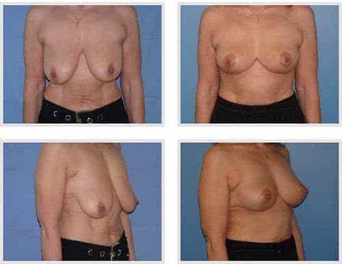 dr robert zerbib chirurgie plastique chirurgien esthetique paris 16 75116 chirurgie esthetique des seins lifting mammaire lifting des seins ptose mammaire affaissement des seins seins qui tombent 8