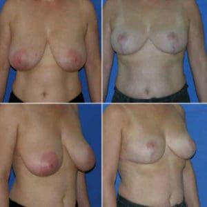 Docteur-Robert-Zerbib-chirurgie-plastique-chirurgien-esthetique-Paris-16-75116-chirurgie-esthetique-des-seins-reduction-mammaire-pour-hypertrophie-mammaire-plastie-mammaire-de-reduction-16