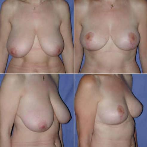 Dr-Robert-Zerbib-Chirurgie-plastique-Chirurgien-esthetique-Paris-16-75116-Seine-et-Marne-chirurgie-esthetique-des-seins-reduction-mammaire-pour-hypertrophie-mammaire-plastie-mammaire-de-reduction-13