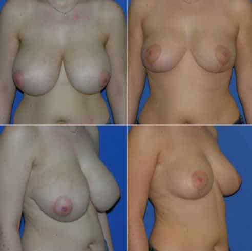 Dr Robert Zerbib Chirurgie plastique Chirurgien esthetique Paris 16 75116 Seine et Marne chirurgie esthetique des seins reduction mammaire pour hypertrophie mammaire plastie mammaire de reduction 8