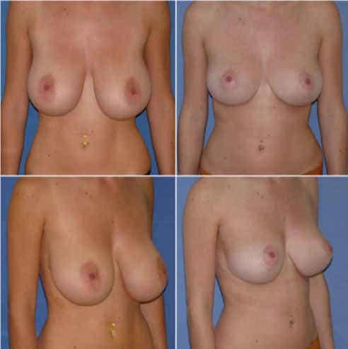 Réduction mammaire metz