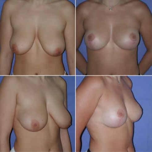 dr zerbib chirurgie plastique chirurgien esthetique paris 16 75116 seine et marne lifting mammaire seins qui tombent 12
