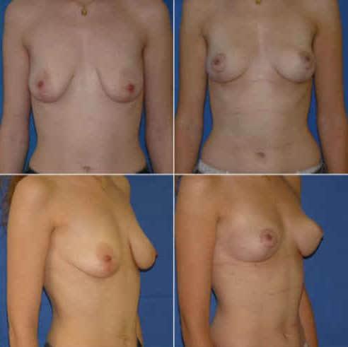 dr zerbib chirurgie plastique chirurgien esthetique paris 16 75116 seine et marne lifting mammaire seins qui tombent 9