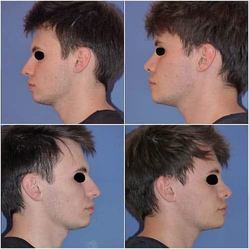 profiloplastie prix profiloplastie avant après profiloplastie paris profiloplastie photo dr robert zerbib