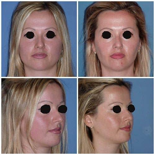 docteur robert zerbib chirurgie plastique chirurgien esthetique paris 16 75116 ablation des boules de bichat chirurgie des joues 2