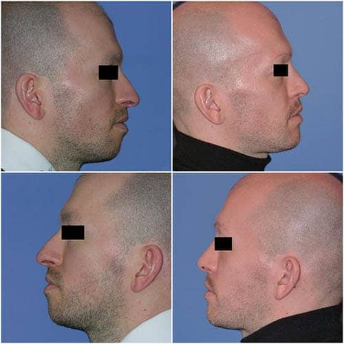 profiloplastie prix profiloplastie avant apres profiloplastie paris 16 profiloplastie homme docteur robert zerbib chirurgien esthetique paris 16 et seine et marne