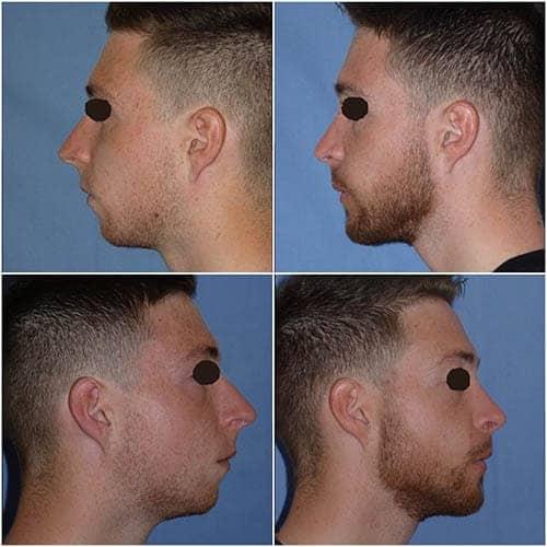 profiloplastie prix profiloplastie avant apres profiloplastie paris profiloplastie homme rhinoplastie avant apres docteur robert zerbib chirurgien esthetique paris 16